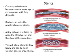 Artificial-heart-treatment-information.pptx