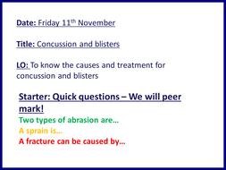 Concussion an blisters - Cambridge National OCR - preventing sports injuries