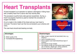 Heart-Transplants-Poster.docx