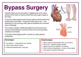 Bypass-Surgery-Poster.docx