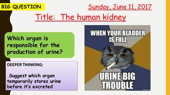 10U3-Kidney-080617.pptx