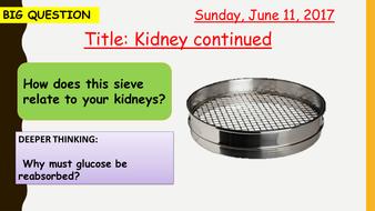 10U3-Kidney-2-URL-150617.pptx