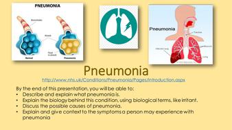 B3.--Pnuemonia.pptx