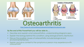 A1-Osteoarthritis.pptx