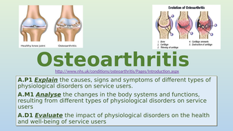 A1.5-Osteoarthritis.pptx