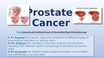A1.9-Prostate-Cancer.pptx