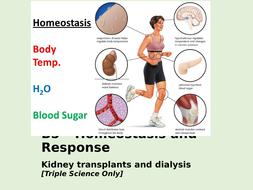B5.9---Kidney-transplants-and-dialysis--TS-.pptx