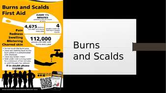 *FIRST AID* Burns and Scalds
