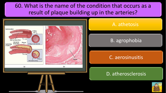 PREVIEW-IMAGES-AQA-GCSE-PE-REVISION-QUIZ-Applied-anatomy-and-physiology-23.pdf