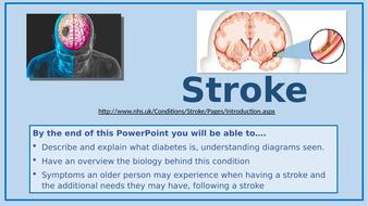 A3.-Stroke.pptx
