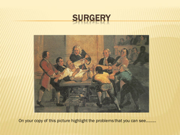 GCSE Surgery in 19th Century