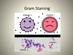 Gram Staining Bacteria