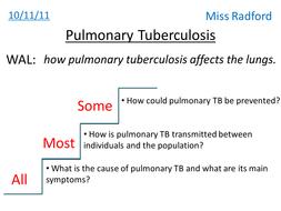 4.4 Pulmonary Tuberculosis AQA AS Biology